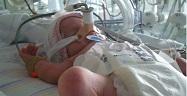 Prematur – är det farligt för mitt barn att komma ut?