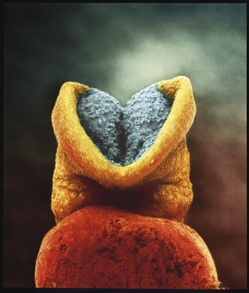 Embryo 22 dagar. Fotograf: Lennart Nilsson